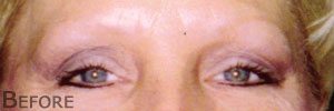 Before permanent eyebrows
